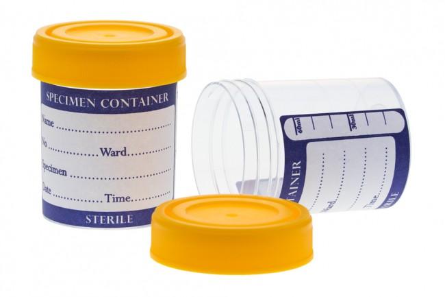 Urine Container (Sterile & Non-Sterile)